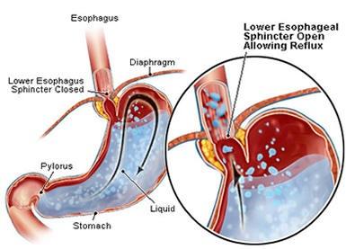 reflux, GERD, increased bone fracture risk, reflux drugs, bone loss ...